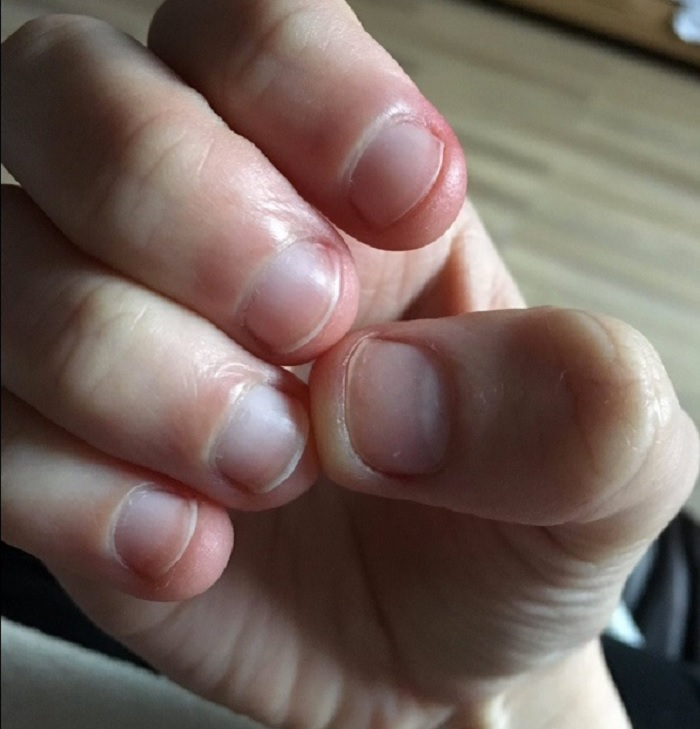 If You Or Anyone You Know Bites Their Nails, Please Be Warned ...
