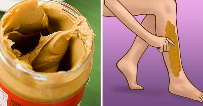 It seems weird to rub peanut butter on legs but the incredible reason can help everyone mind - Unknown uses of butter ...